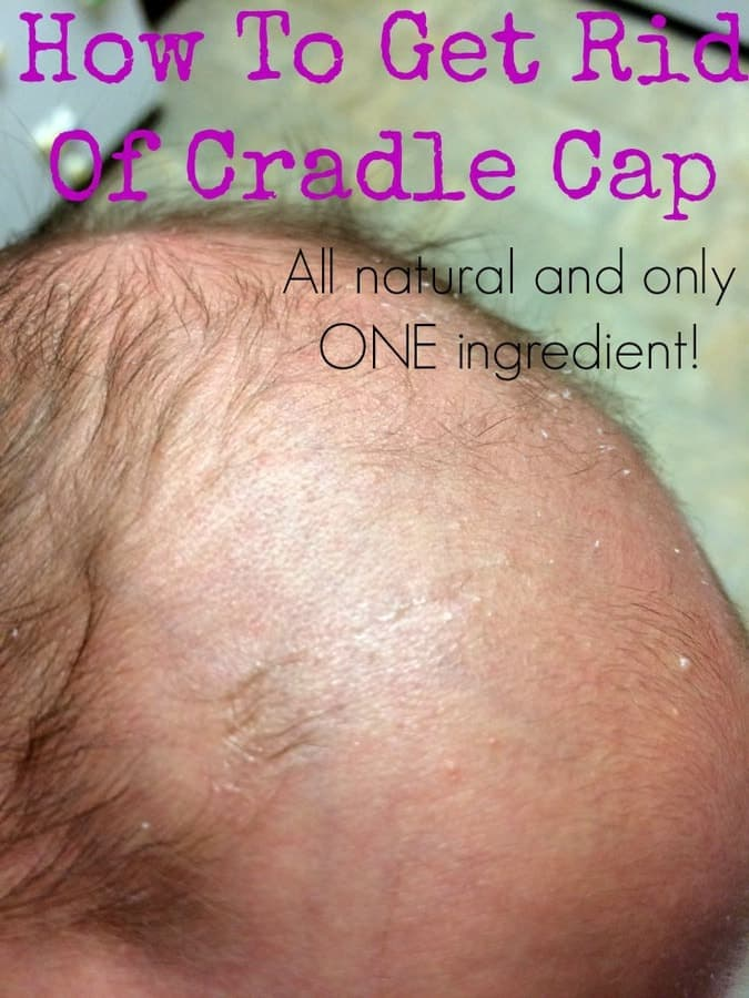 How To Get Rid Of Cradle Cap